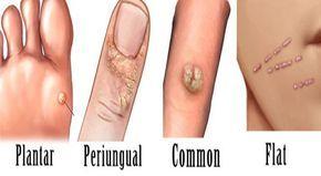 papillomavirus cura naturale intestinal cancer bloating
