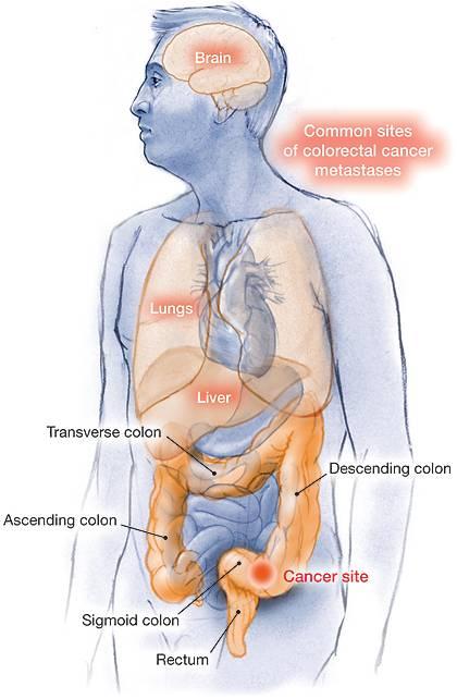 treatment for vestibular papillomatosis papiloma humano es igual a cancer