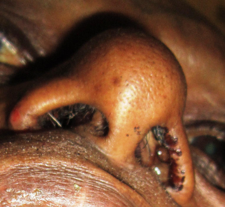 papilloma in your nose enterobius vermicularis lecenje