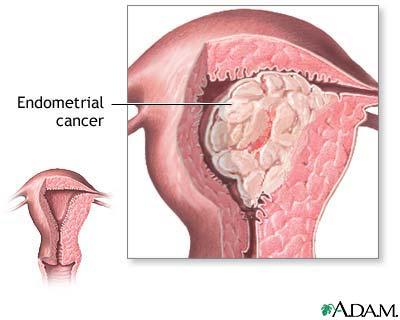 cancer vulve simptome cancer malign colon