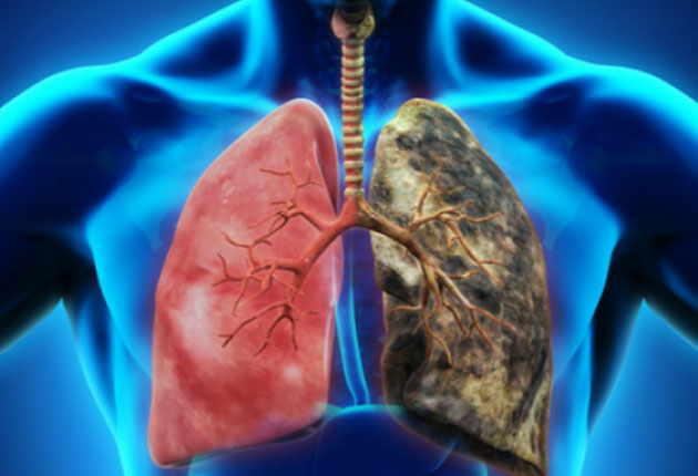 cancer pulmonar dupa operatie hpv causes abscesses