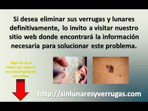 remedios naturales para tratar el virus del papiloma humano