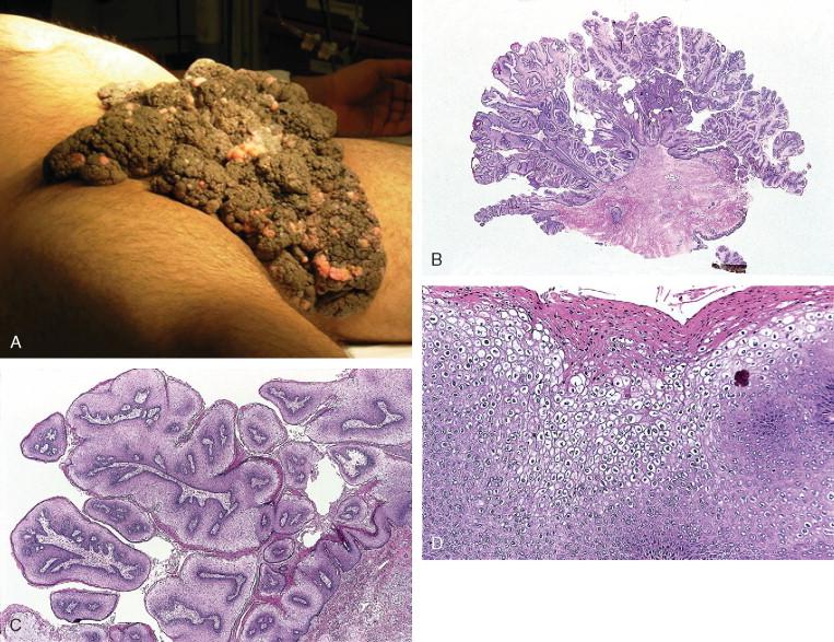condyloma acuminata incubation