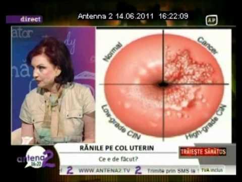 operatie cancer de col uterin pret