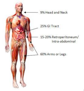 cancer colon y ovario cancer de pancreas sintomas