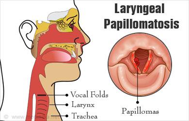 papilloma of larynx