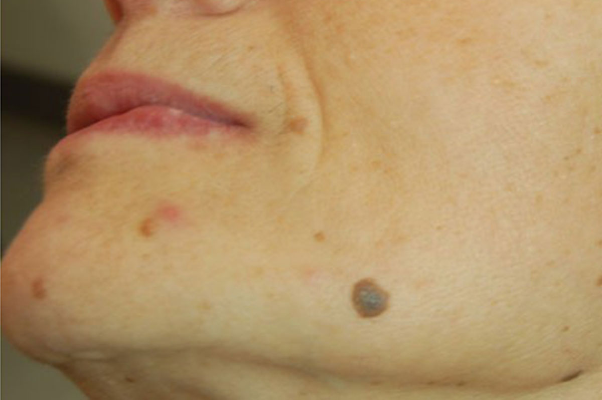 dopo laser papilloma virus cancer de ano por hpv