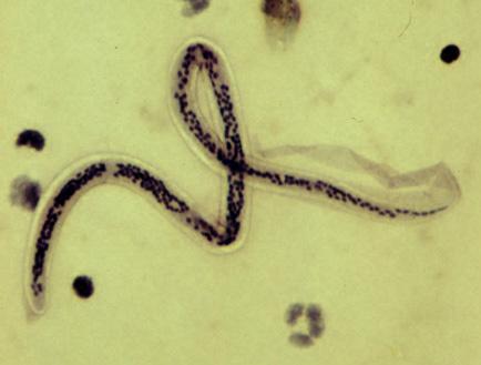 papiloma seno causas paraziti intestinali exemple
