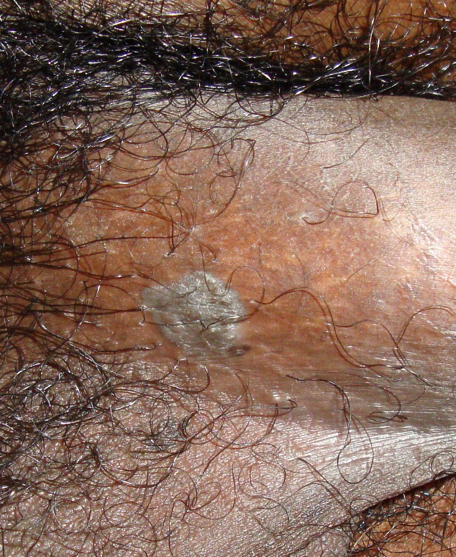 condyloma acuminatum benign