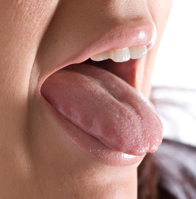 what causes papilloma on the tongue