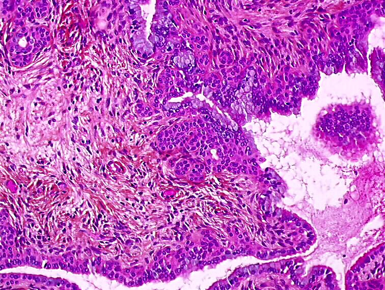 papilloma squamous metaplasia cancer hodgkin taux de guerison
