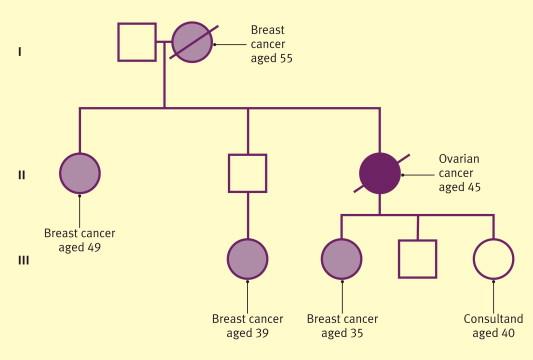 pancreatic cancer ercp