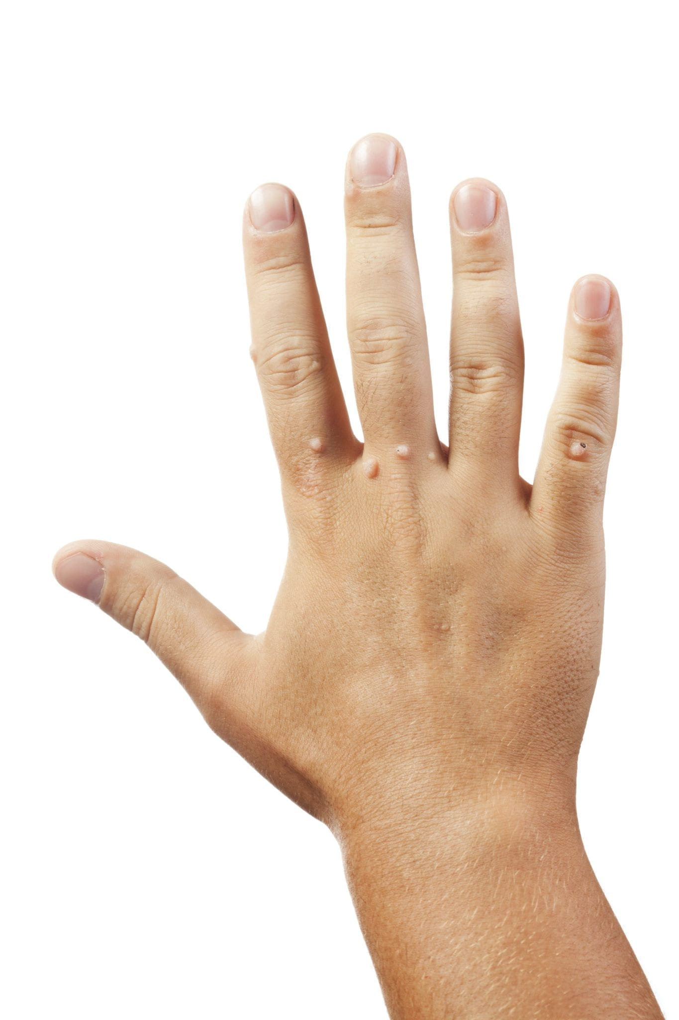 warts on hands sexually transmitted