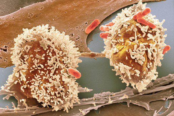 cancer vesicula biliar gpc
