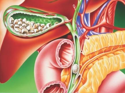 sare amara curatarea colonului cancer de colon metastaze ficat