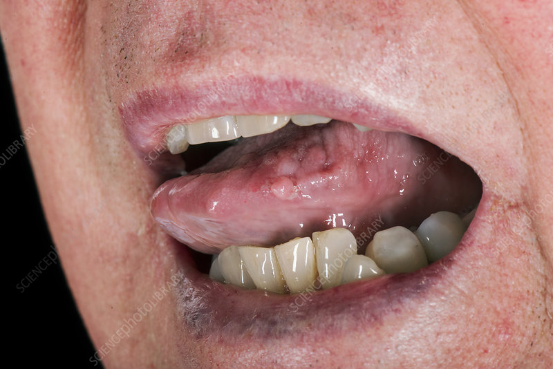 papilloma not caused by hpv sarcoma cancer in hand