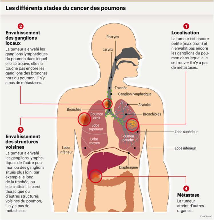 Factorii de risc pentru cancerul de prostată   Competent despre sănătate pe Prostaffect