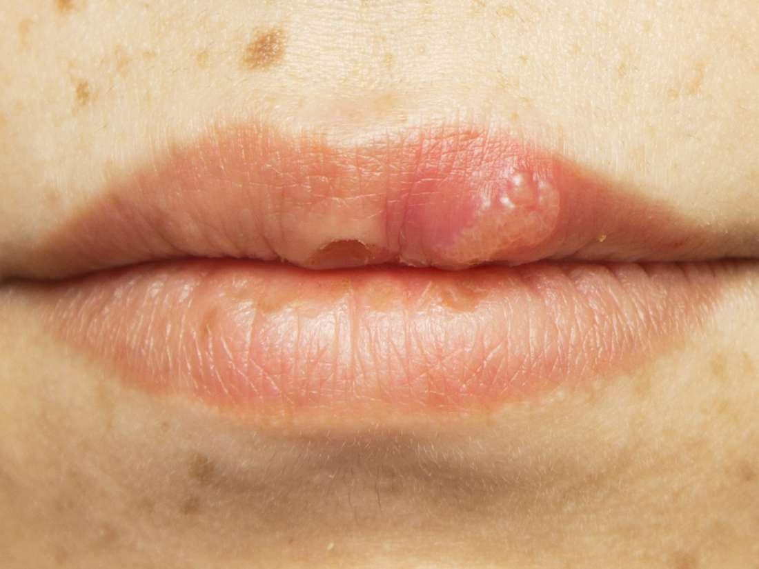 hpv lip rash herpes genital virus del papiloma humano