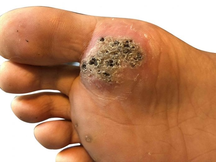 wart on foot infected