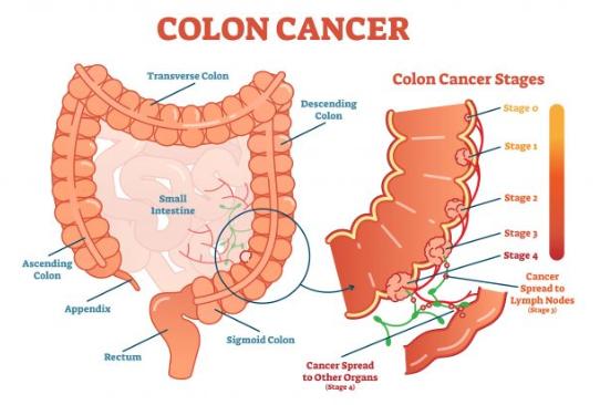 cancer de colon que es pancreatic cancer tests