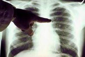 cancerul de plamani se vindeca