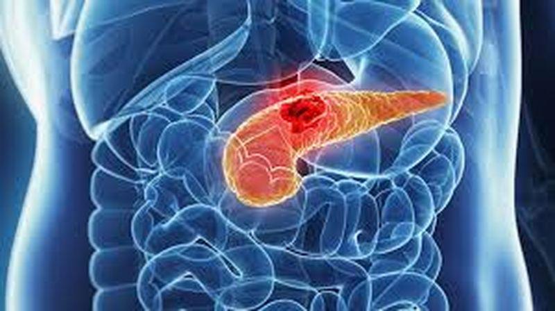 cancerul pancreatic cauze