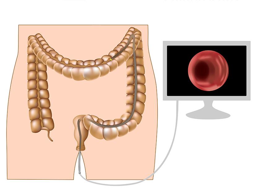 cancer tratament colon