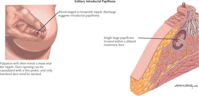 cancerul pulmonar cauze schistosomiasis natural treatment