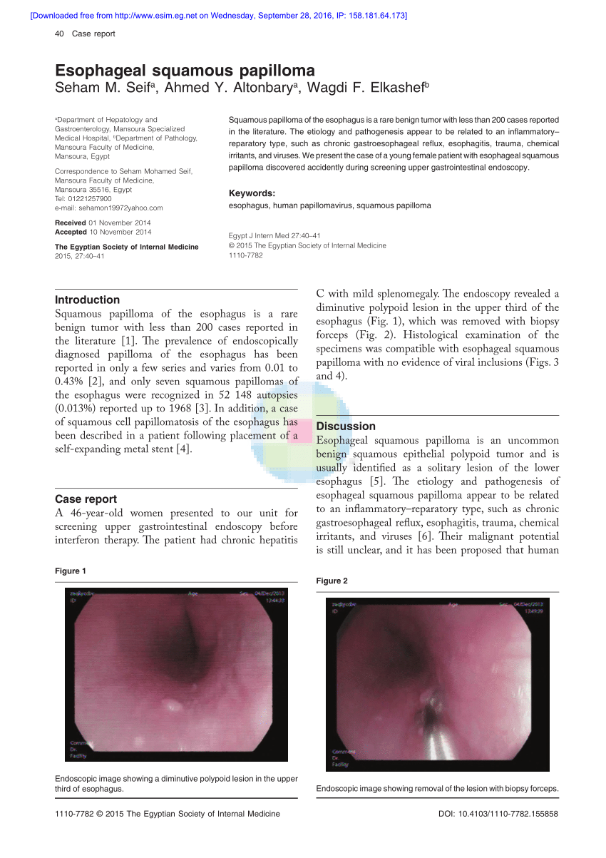 squamous papilloma of the esophagus