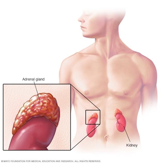 cancer renal causas parazitii antimilitie ???????