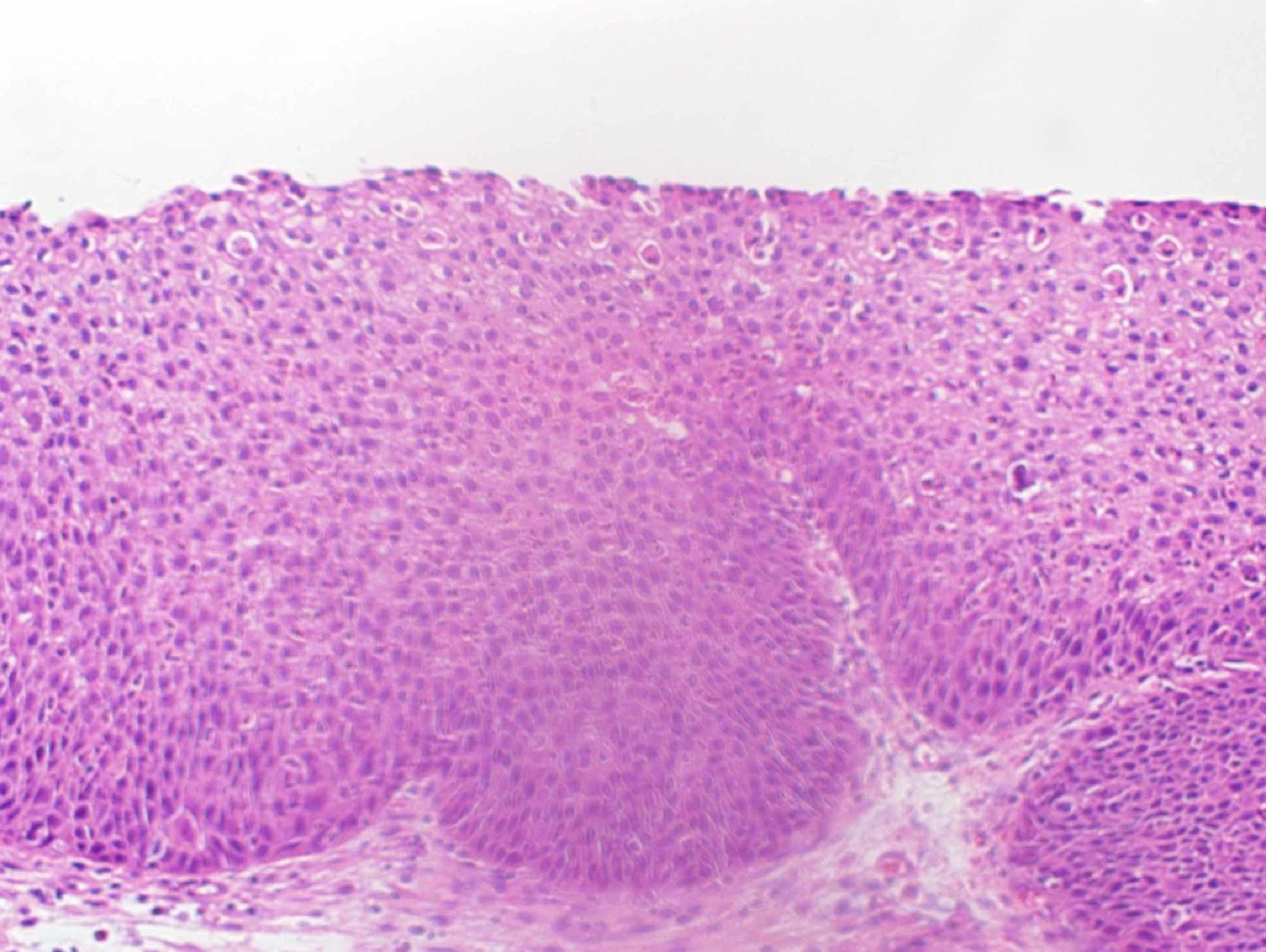 micro papillomas