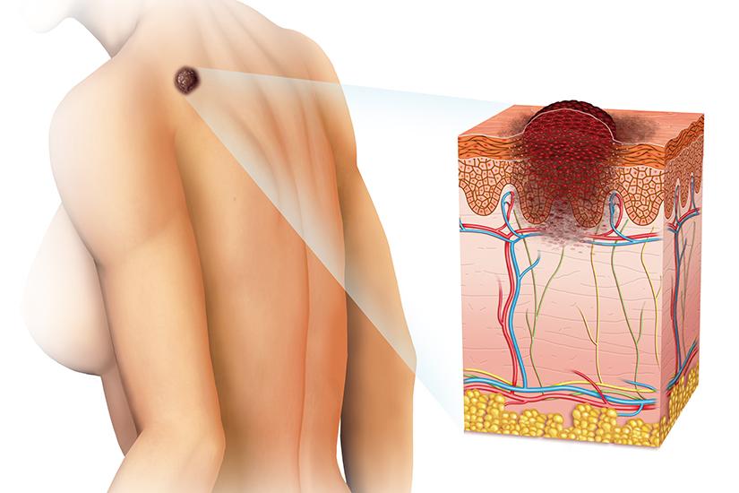 cancer de piele stadiul 3