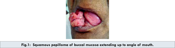 icd 10 code for benign squamous papilloma human papillomavirus infection research