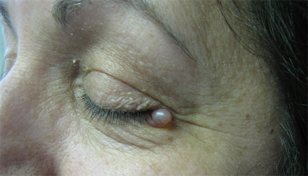 icd 10 papilloma left eyelid hpv vaccines to prevent cervical cancer and genital warts an update