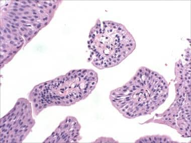 urothelial papilloma with atypia