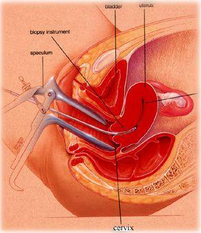 tratamentul venelor varicoase prin remedii populare la bărbați