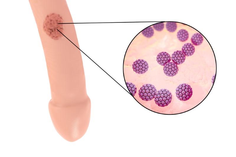 virus del papiloma humano imagenes