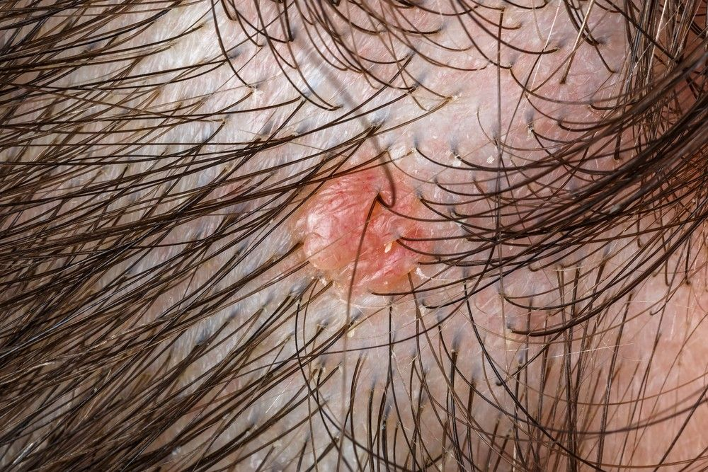 squamous papilloma scalp
