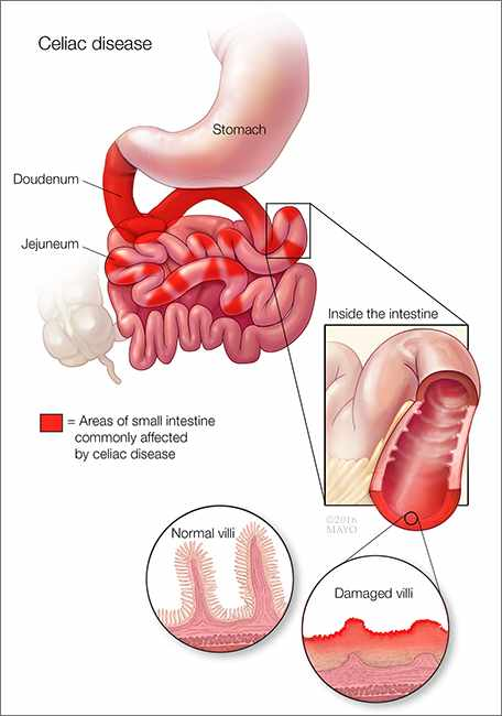 intestinal cancer celiac disease