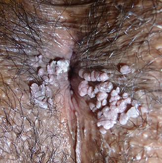 curar oxiuros naturalmente hpv 16 and 18 penile cancer
