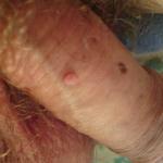 papillomavirus verrue homme wart on my skin tag
