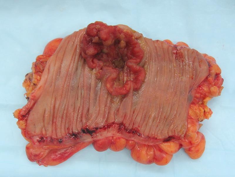 cancer colon maligne uterine cancer lower back pain