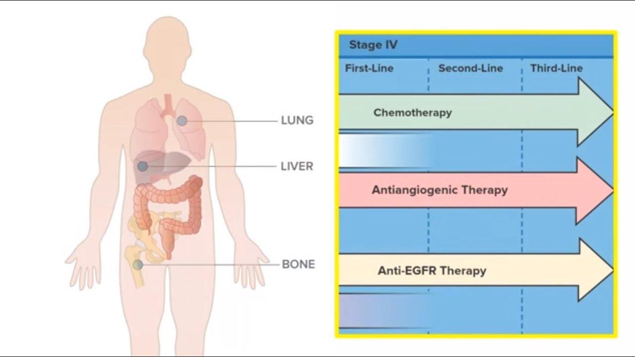 cancer colon metastases