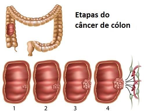cancer de colon como se detecta cancerul rectal debuteaza prin