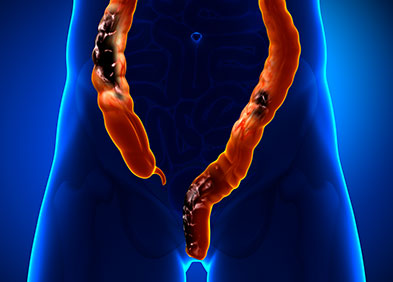 cancer de colon galopante hpv can cause what cancers