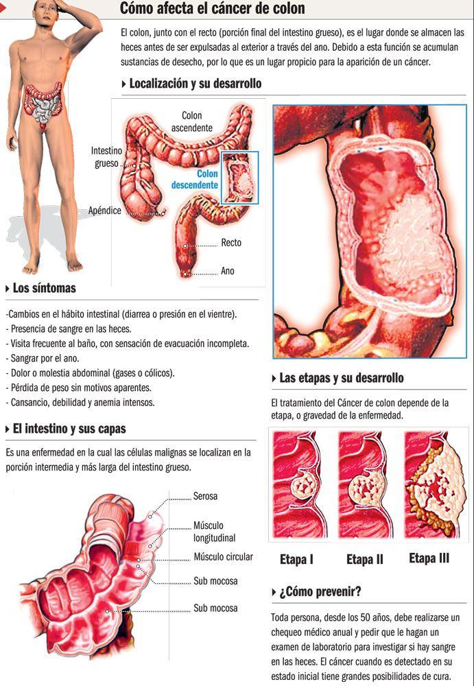papilloma in foot