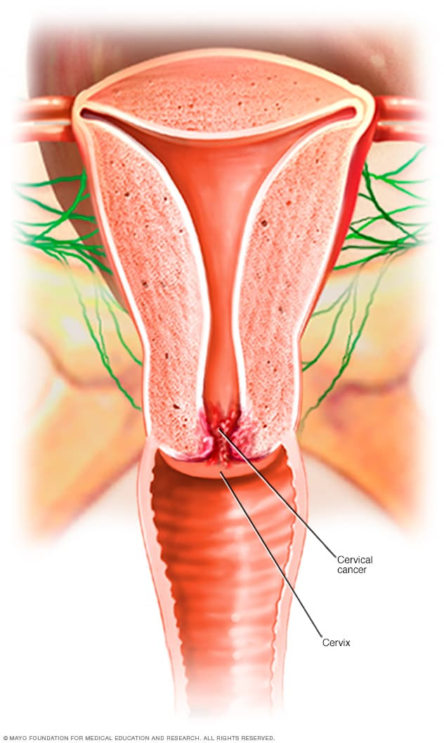 what causes papilloma virus peritoneal cancer causes