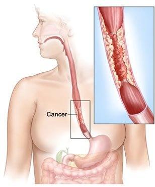 Cancerul de pancreas, ucigaşul tăcut   constiintaortodoxa.ro
