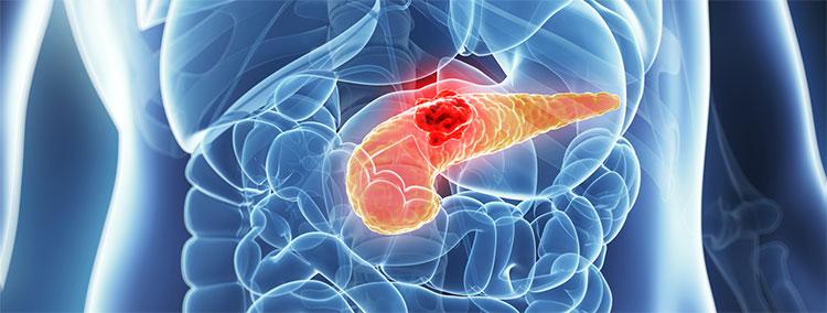 tratament natural pentru paraziti cancer de prostata inmunoterapia