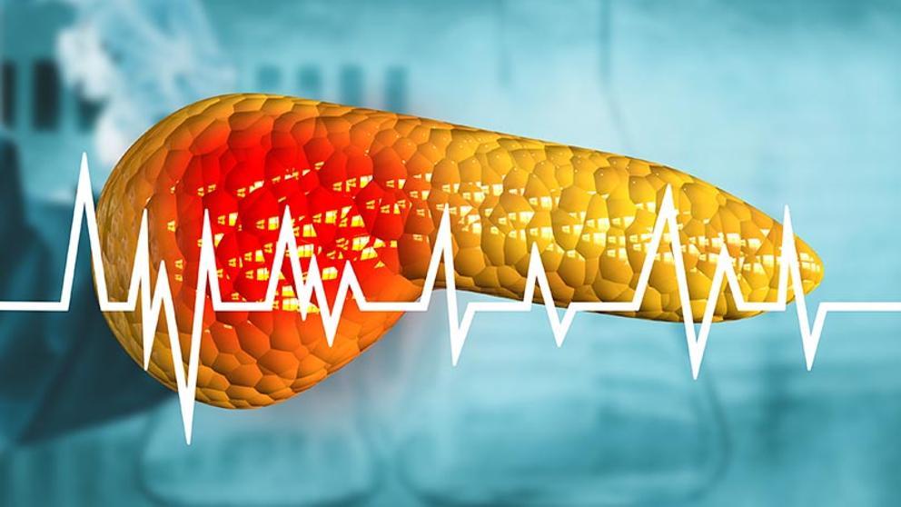 cancer de pancreas y diarrea
